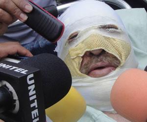 RSF pide investigar 'a fondo' el atentado contra radio boliviana