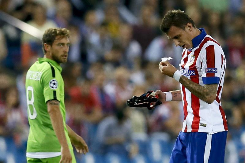 El delantero croata del Atlético de Madrid Mario Mandzukic (d) se quita el protector nasal durante el partido de la segunda jornada de la fase de grupos de la Liga de Campeones. Foto: EFE