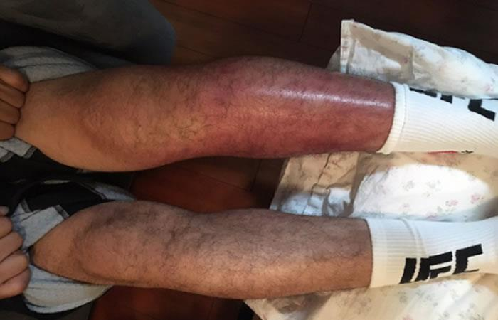 Luchador termina con la pierna destrozada y el resultado es impactante