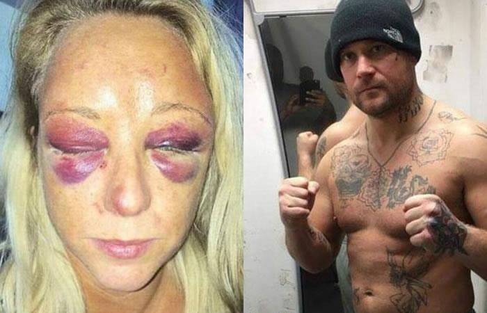 Reino Unido: Violenta agresión de un boxeador a su novia