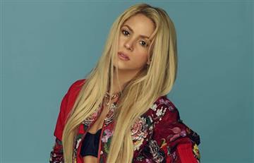 ¿Shakira está sufriendo problemas de calvicie?