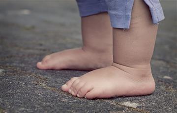 Gobierno asiste a un adolescente de 13 años que pesa 10 kilos