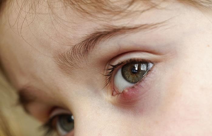 Remedios caseros. Foto: Shutterstock