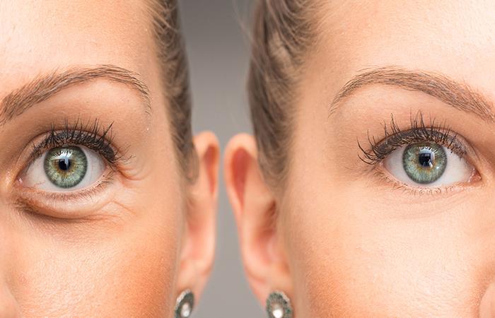 Elimina las ojeras con estos sencillos remedios