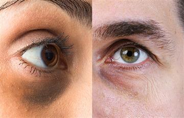 ¿Cómo eliminar las ojeras y la inflamación bajo los ojos?