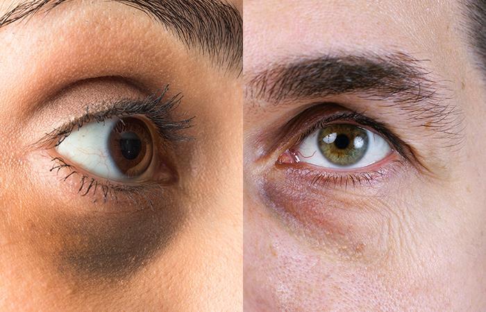 Desaparece las ojeras de tu vida. Foto: Shutterstock