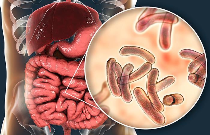 No consumir agua de la llave podría ayudar a evitar el cólera. Foto: Shutterstock