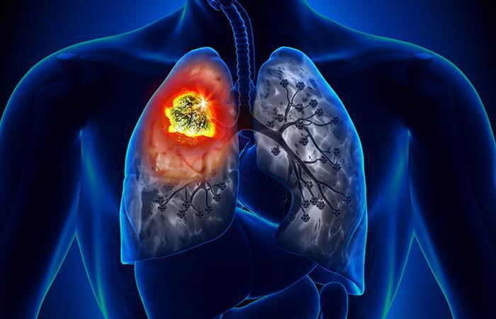 Los síntomas de estas enfermedades suelen ser confundidos. Foto: Shutterstock
