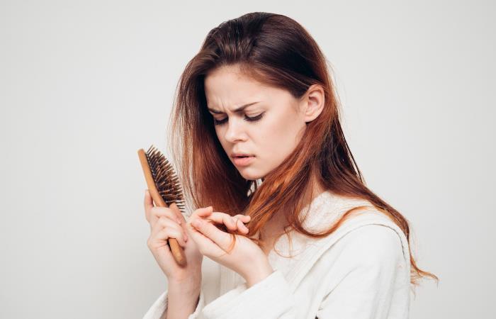 La caída del cabello se puede prevenir con algunos hábitos. Foto: Shutterstock.