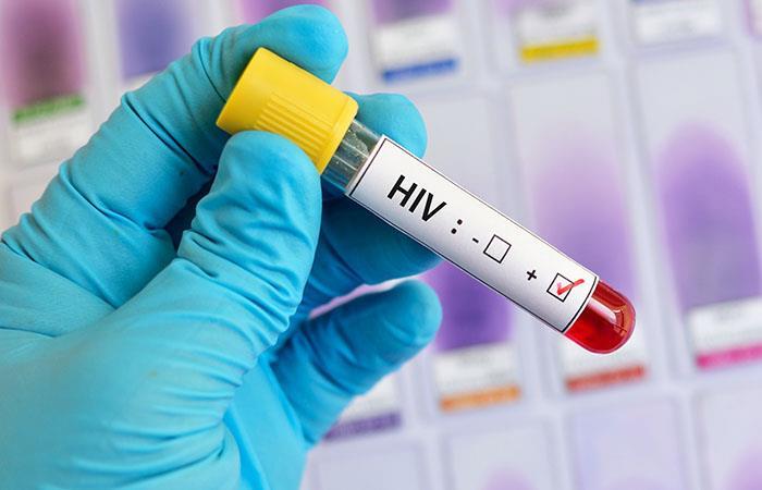 ¿El VIH será un reto a futuro? Foto: Shutterstock