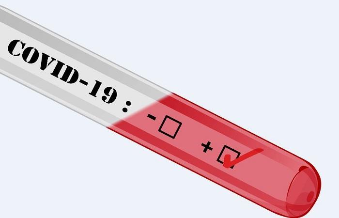 Conoce el funcionamiento de los test contra el COVID-19. foto: Pixabay