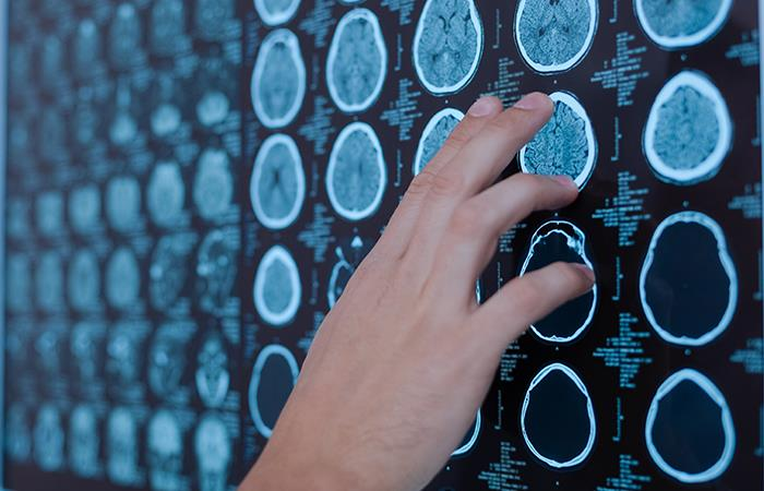 El coronavirus agrava los efectos de los derrames cerebrales. Foto: Shutterstock