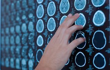 Expertos afirman que los derrames cerebrales son más graves en pacientes con COVID-19