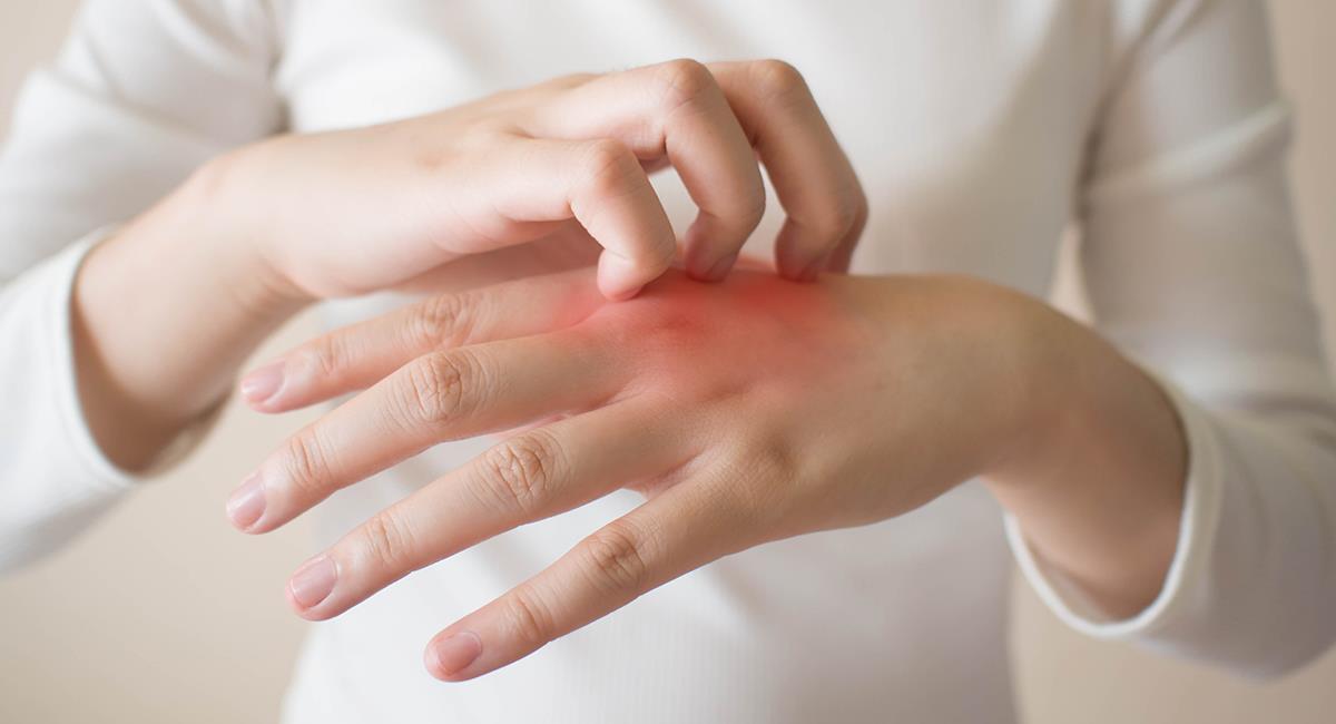 Sigue estos consejos para prevenir el cáncer de piel. Foto: Shutterstock