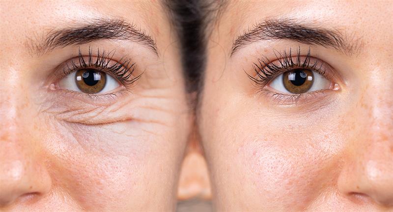 Trucos naturales para deshacerte de las ojeras y las bolsas en los ojos. Foto: Shutterstock