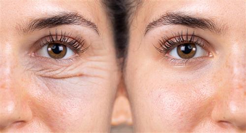 ¿Cansado de las ojeras y las bolsas en los ojos? 7 trucos para eliminarlas