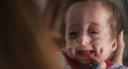 Conoce el increíble caso de Vito, el bebé que nació con envejecimiento prematuro